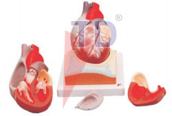 human heart on diaphragm