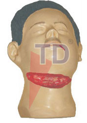 suicidal wounds of throat